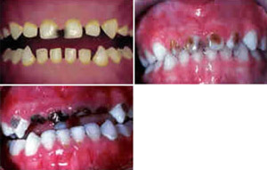 Dental Disease in Children
