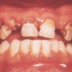 Severe Dental Disease in Children