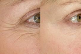wrinkle_eye.jpg