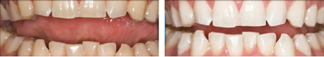 before-after-teeth-whitening2.jpg