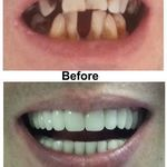 Crown_bridge_denture