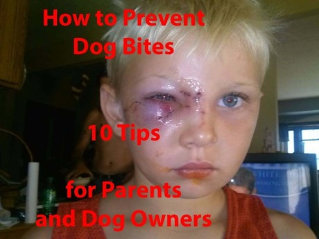 Isaac_Dog_Bite_Stop_Abuse_Stop_Bullying_in_Michigan_copy.jpg