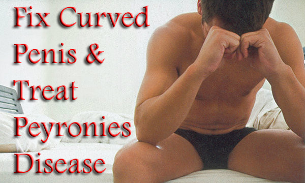 curved-penis-copy-2_orig.png