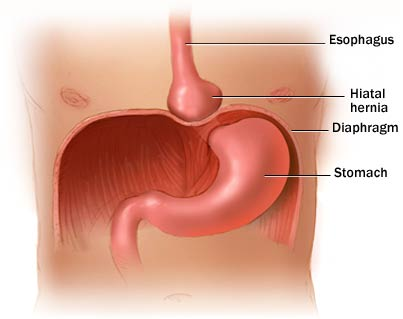 Hiatus hernia - Advanced Gastro Centre and Weight Loss Solutions