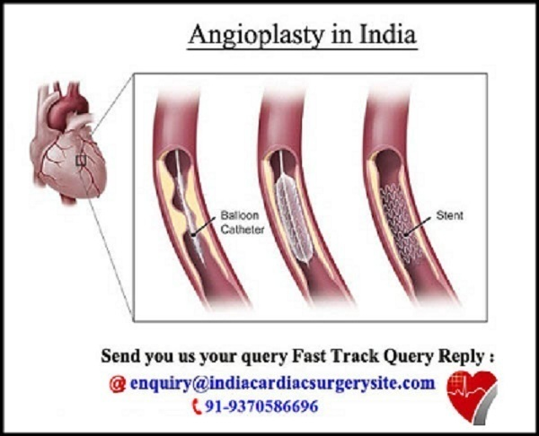 Affordable Angioplasty cost in Chennai