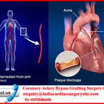 Get worldclass Cardiac Cure at Top Hospitals for CABG Surgery in Mumbai