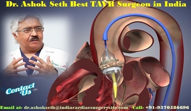 Dr. Ashok Seth Best TAVR Surgeon in India