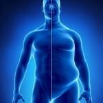 درمان چاقی با طب سوزنی