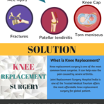 Knee_replacement_surgery