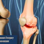 Better Outcomes Of Knee Replacement Surgery At Fortis Multispeciality Hospital In Mumbai