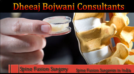 Spine_suregery_in_india