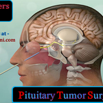 Schedule Pituitary tumor Surgery in India in Concern with Best Experts at Minimal Cost Medical Tourism Packages