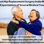 Low Cost Hip Replacement Surgery India matches the expectations of several Medical Tourists