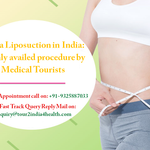 Mega Liposuction in India: Highly availed procedure by Medical Tourists