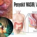 Nama obat wasir muncul benjolan daging di anus