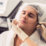 ​Selecting A Surgeon For The Perfect Brow Lift Plastic Surgery
