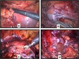 Obat Setelah Operasi Batu Ginjal