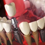 The Benefits of All-On-Four Dental Implants