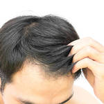 ​Tips for Choosing the Best Laser Therapist for Hair Regrowth
