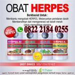 obat herpes di pinggang