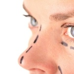 ​Important Notes On Plastic Surgery