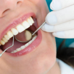 Guides in Hiring the Best Dentist