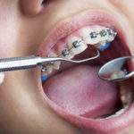 Tips Utilized When Picking the Superlative Orthodontist