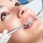 Things to Contemplate on When Looking for the Perfect Orthodontist for You