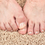 ​Factors to Consider When Buying the Nail Fungus Treatment Products