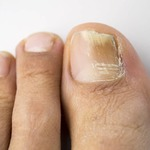 Finding the Best Nail Fungus Products