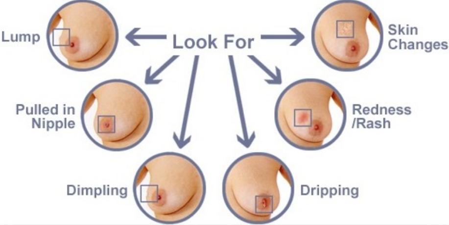 Inverted Nipple.jpg