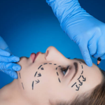 ​Benefits of Undergoing a Plastic Surgery