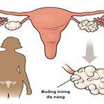Buồng trứng đa nang và triệu chứng nhận biết