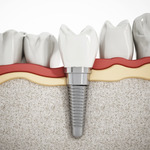 ​How to Choose the Best Dental Care Specialist