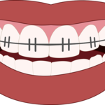 Points One Need to Know about Orthodontist