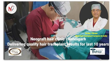 Things to Consider for Choosing the Best Hair Transplant Surgeon
